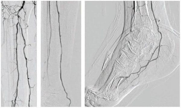 Figure 1. Diagnostic angiogram: ATA CTO, patent PTA, patent PER, and patent LPA. ATA = anterior tibial artery; CTO = chronic total occlusion; PTA = posterior tibial artery; PER = peroneal; LPA = lateral plantar artery.