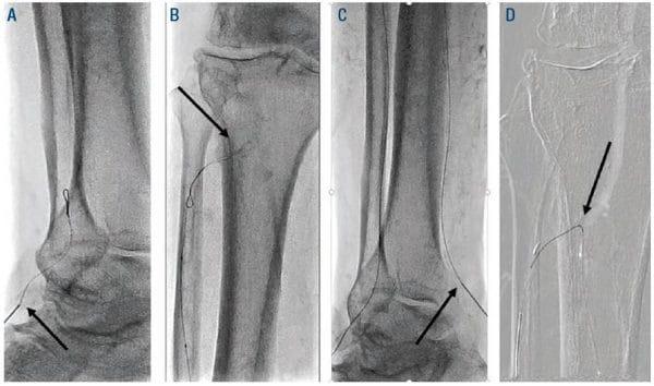 Figure 3. Arrow (A) retrograde ATA access, (B) retrograde wire looped at ATA ostium, (C) retrograde PT access, (D) retrograde PTA crossed into proximal ATA. PT = posterior tibial; PTA = posterior tibial artery; ATA = anterior tibial artery.