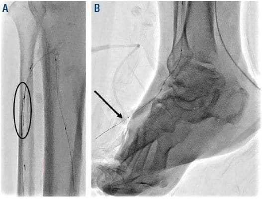 Figure 4. Oval (A) antegrade and retrograde wires in ATA and arrow (B) externalization of antegrade wire through the retrograde ATA access. ATA = anterior tibial artery.
