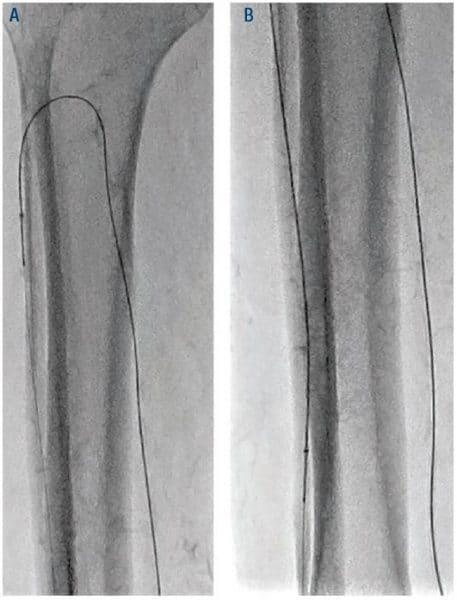 Figure 5. Atherectomy of ATA through PTA access with 1.5 Classic CSI catheter. ATA = anterior tibial artery; PTA = posterior tibial artery; CSI = Cardiovascular Systems, Inc.