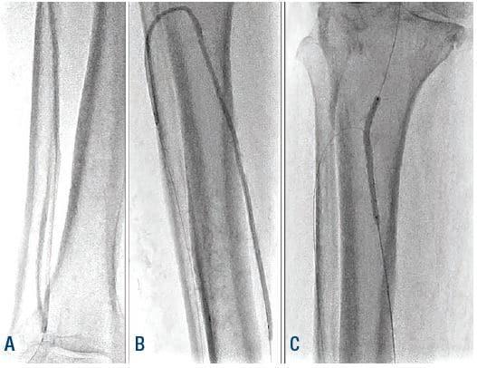 Figure 6. Angioplasty of ATA, PTA, and TPT. ATA = anterior tibial artery; PTA = posterior tibial artery; TPT = tibial peroneal trunk.