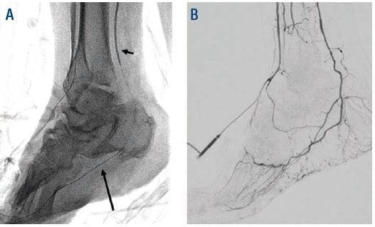 Figure 7. (A) Short arrow points to PTA access balloon tamponade, long arrow is pointing at Fielder XT. (B) Successful hemostasis.